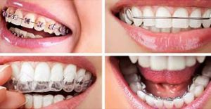 Different Types of braces: metal braces, clear braces, ceramic braces, lingual braces.